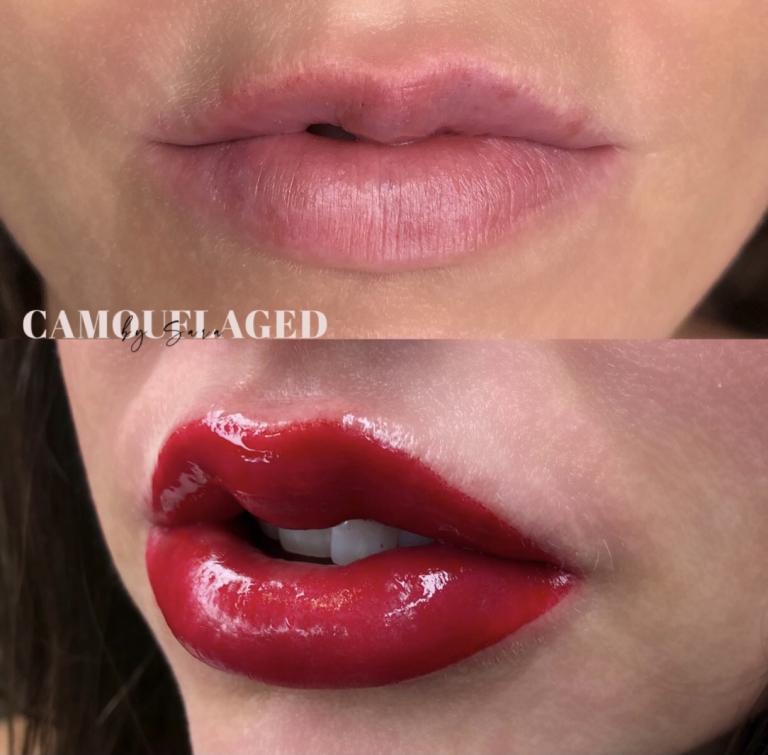 Permanent Lips massachusetts