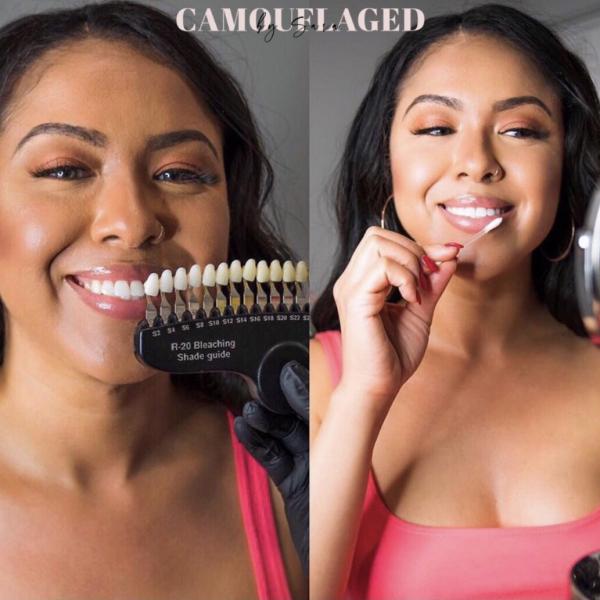 teeth whitening model photo