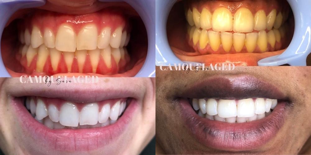 Teeth Whitening Boston MA(1)